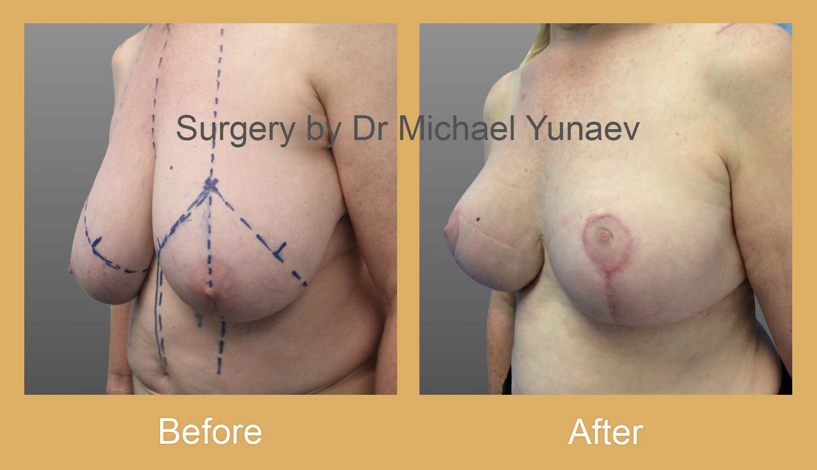 breast reduction surgery potts point