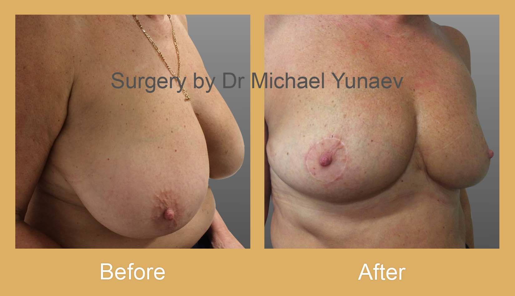 breast reduction surgery sydney
