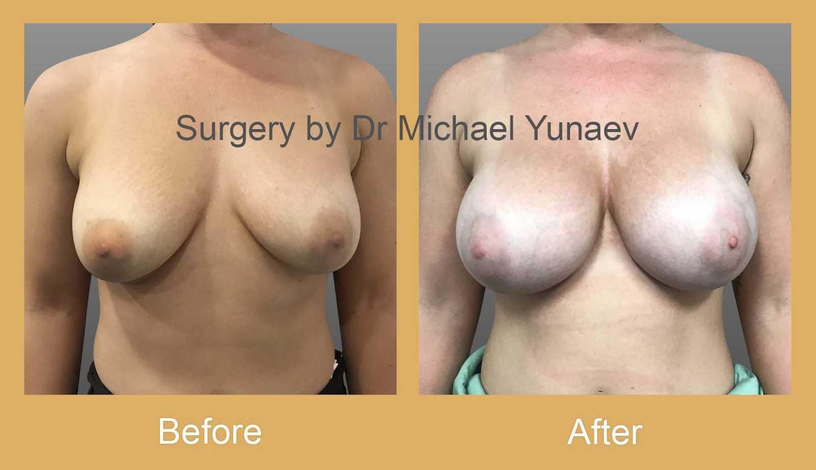 breast revision sydney