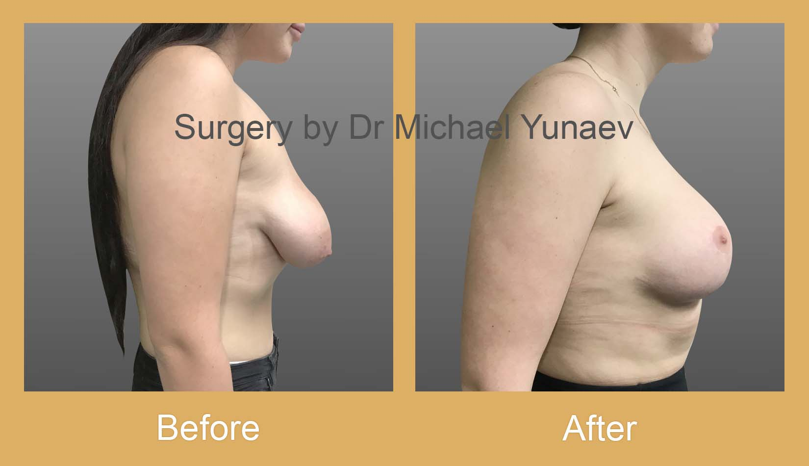 stage 2 breast asymmetry and tuberous breast bowral