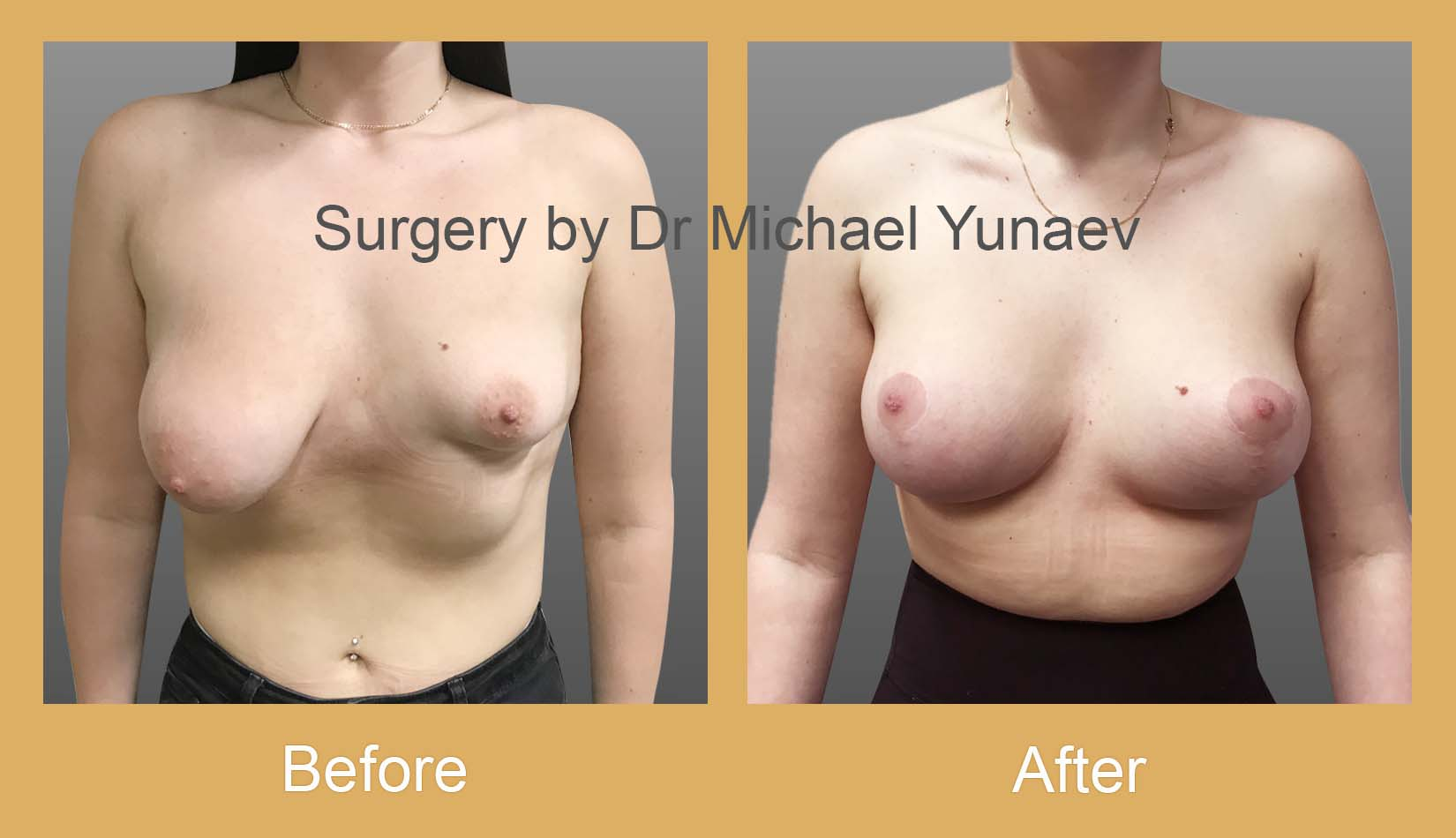 stage 2 breast asymmetry and tuberous breast potts point