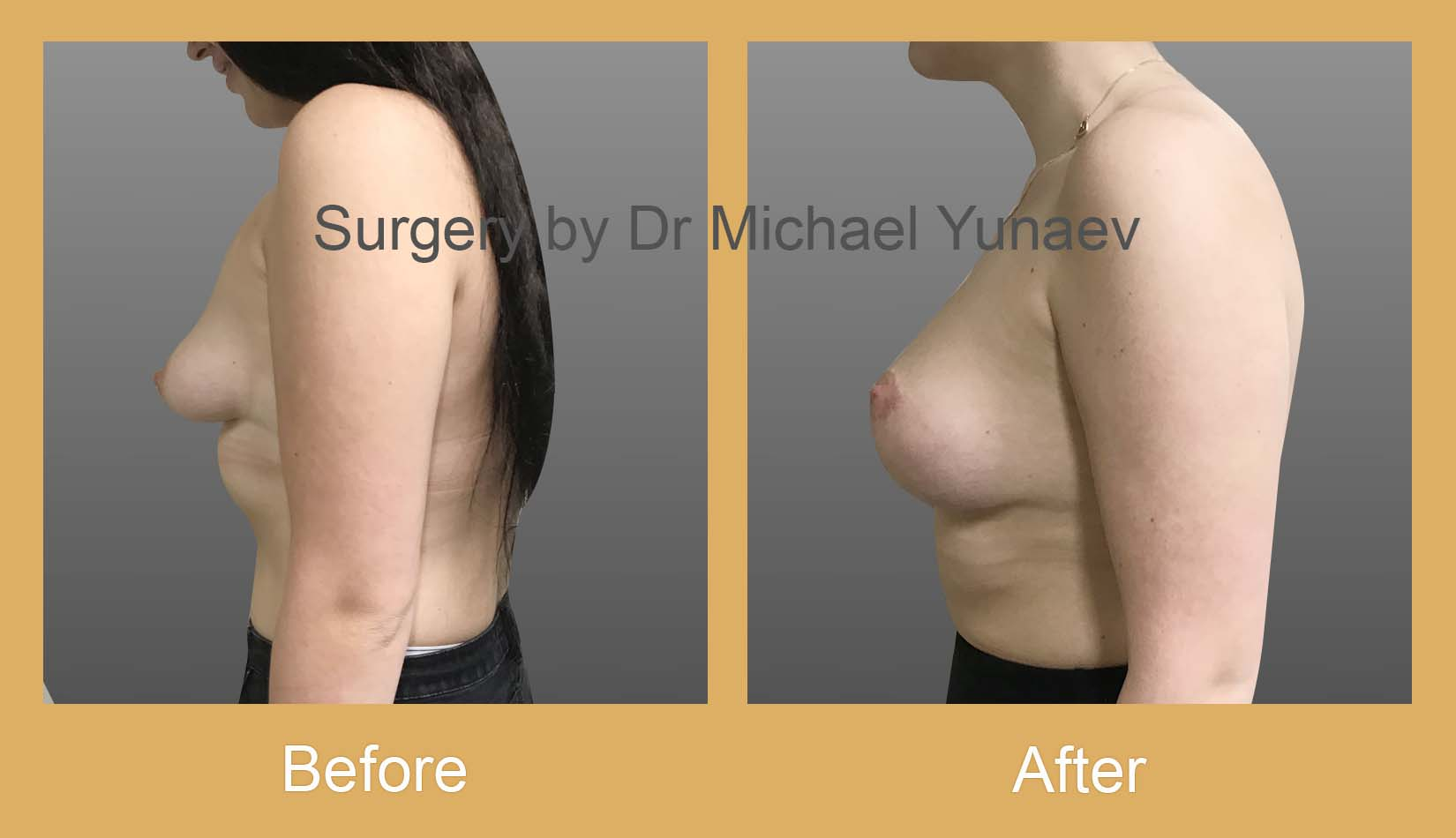 stage 2 breast asymmetry and tuberous breast rozelle