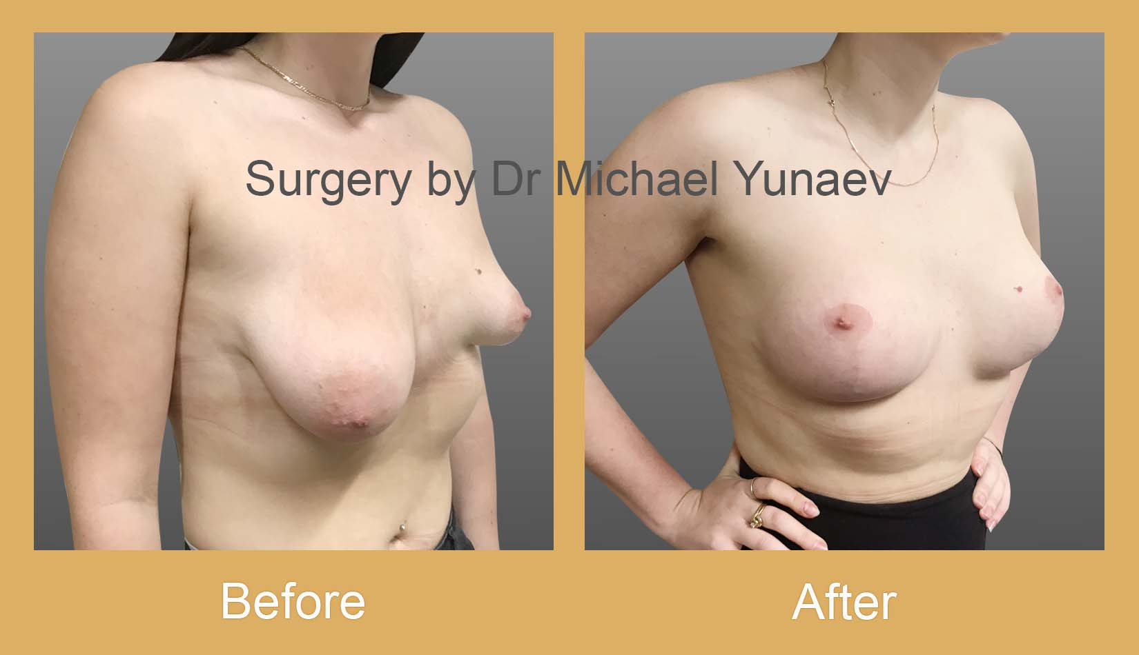 stage 2 breast asymmetry and tuberous breast sydney