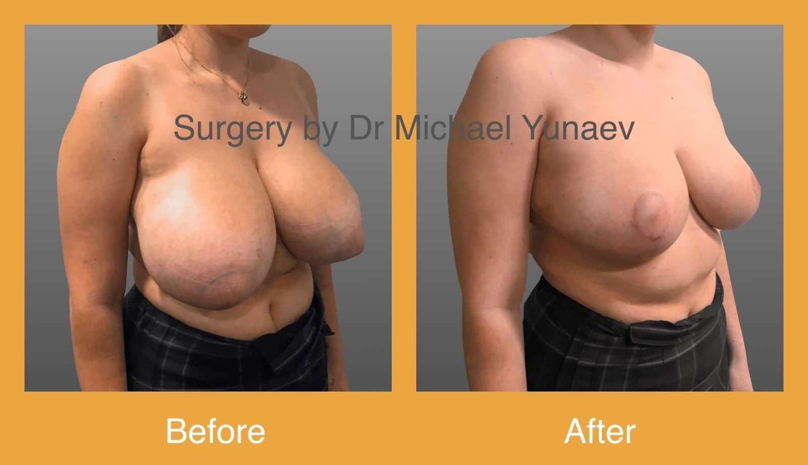 breast reduction albury
