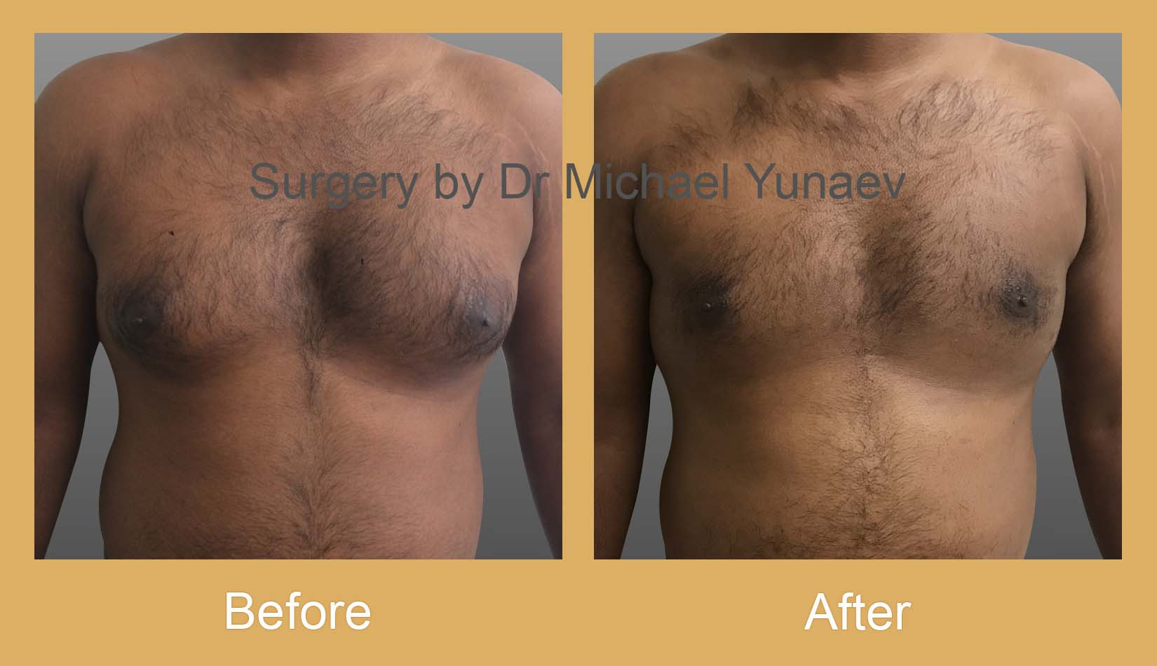 gynaecomastia surgery potts point