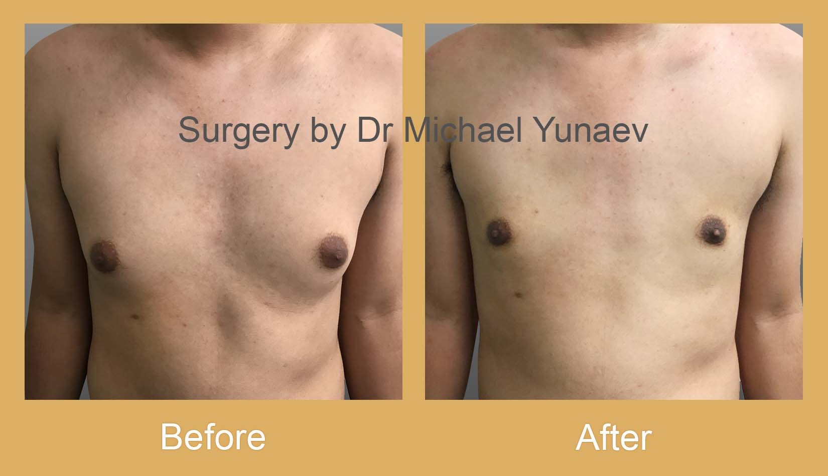 gynaecomastia treatment bowral