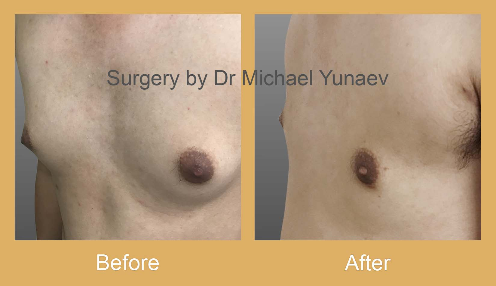 gynaecomastia treatment camperdown
