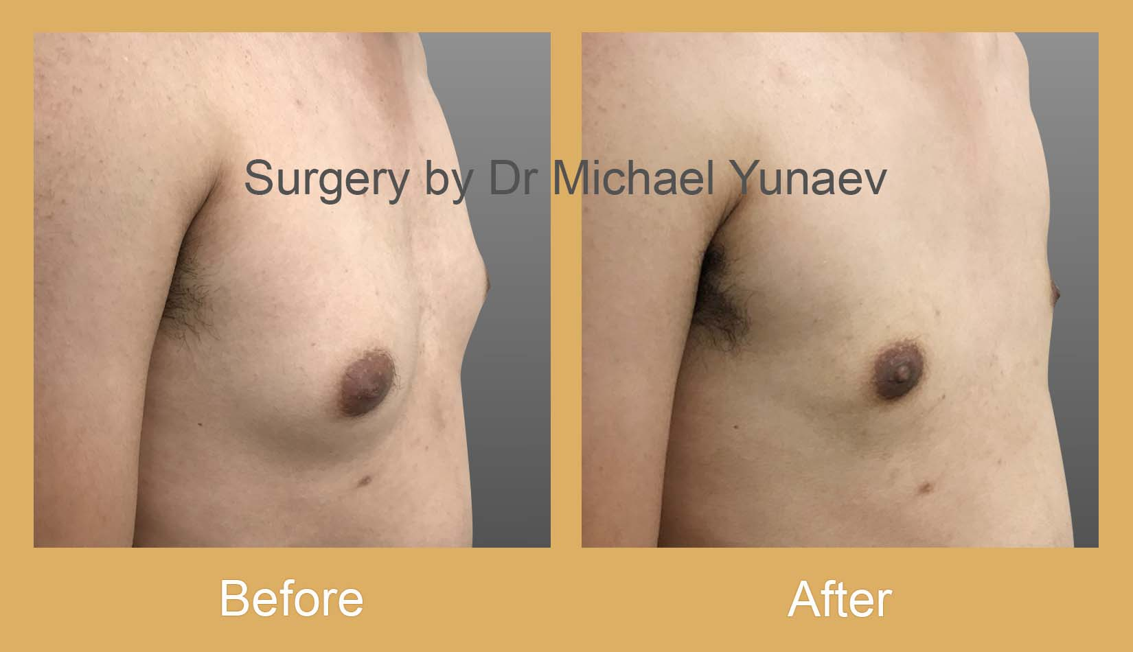 gynaecomastia treatment potts point