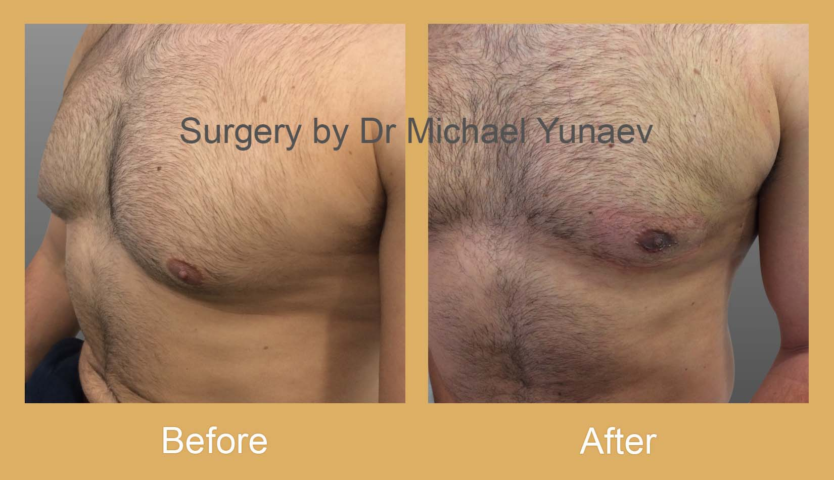 male breast reduction sydney before and after