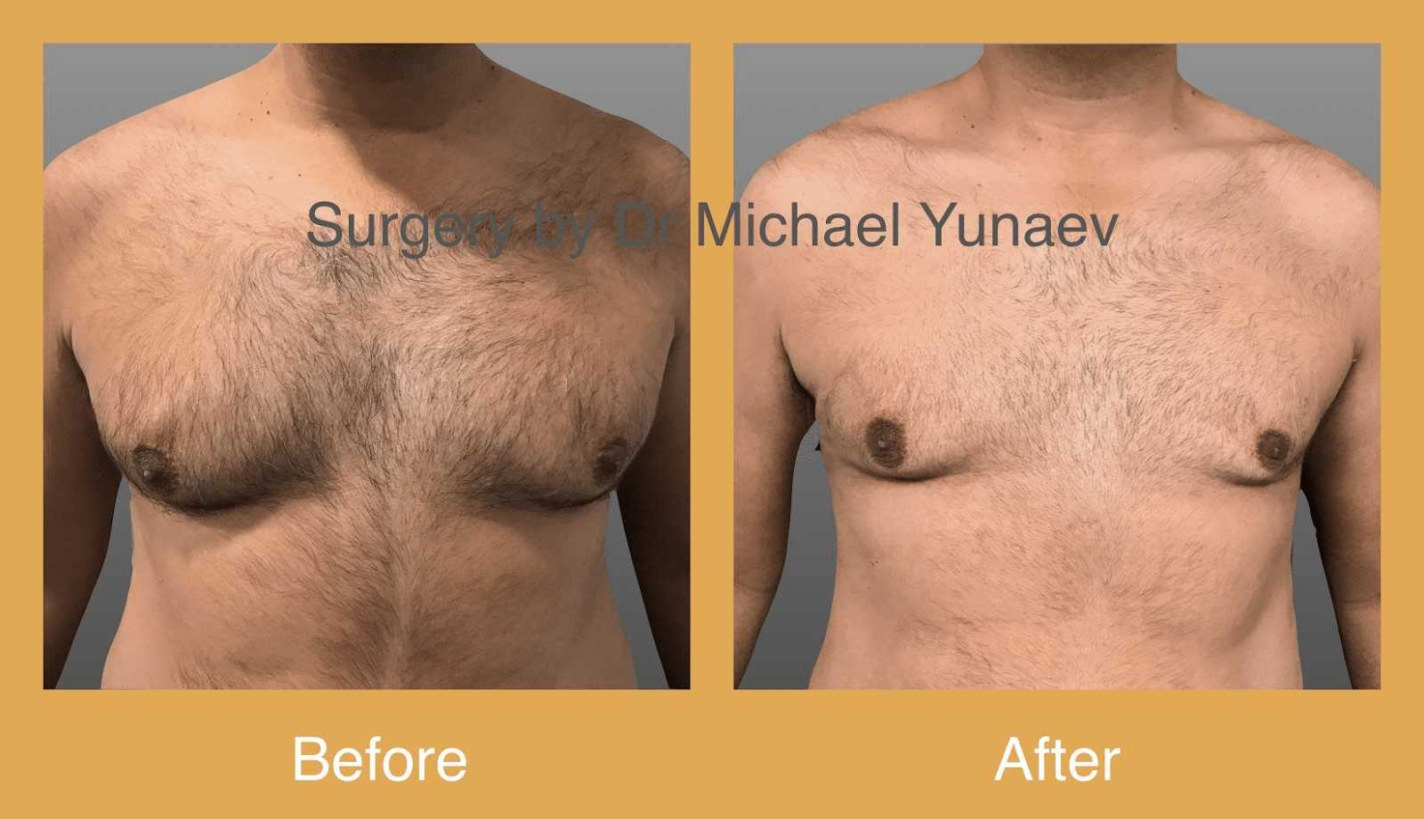 male breast reduction sydney