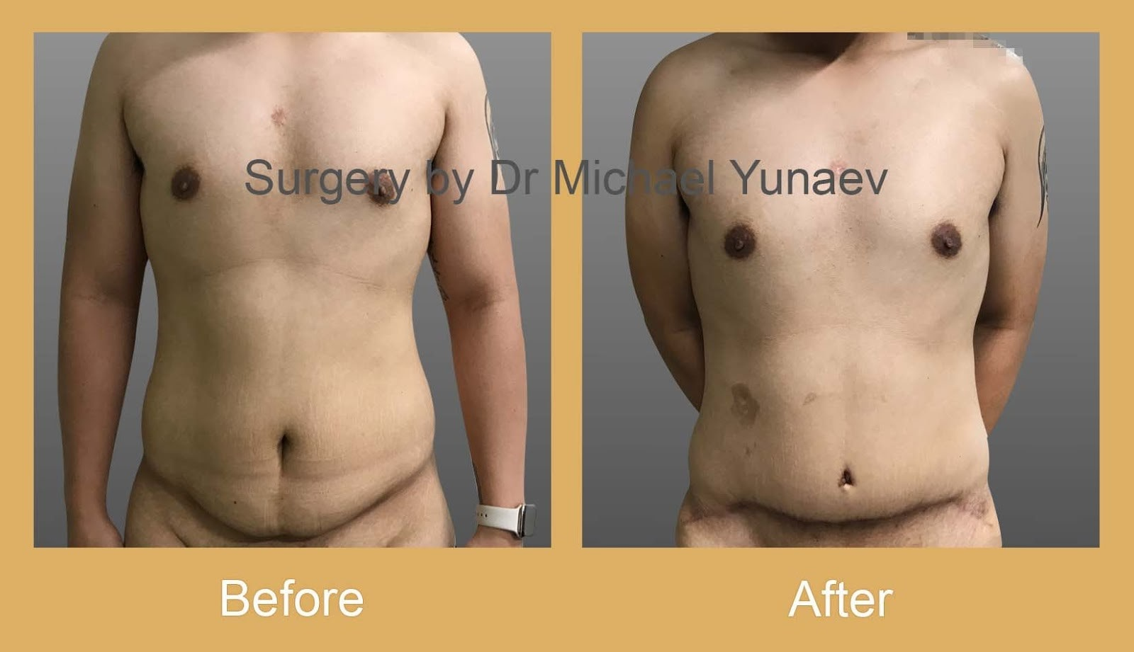 male tummy tuck port macquarie