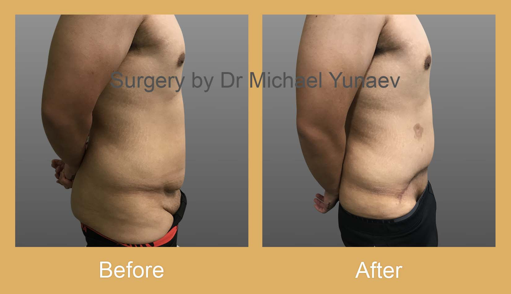 Tummy Tuck For Men   More Affordable From $20Week   Sydney, Bella ...