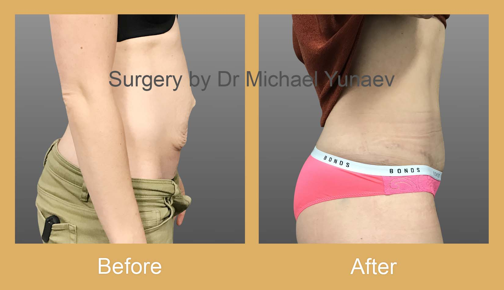 tummy tuck before and after sydney