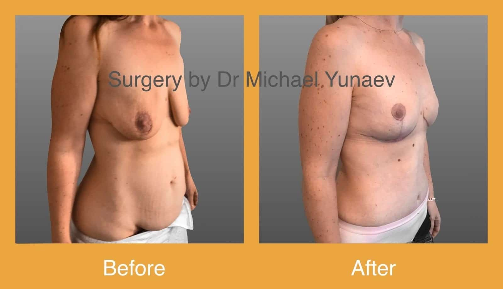 tummy tuck port macquarie
