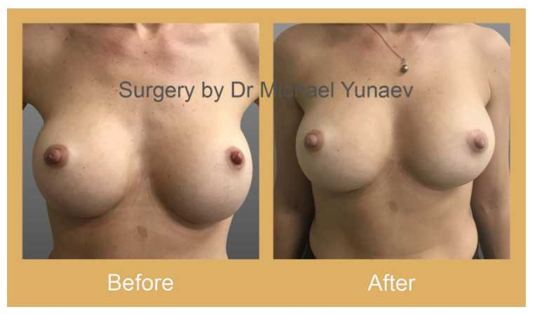 breast implant procedure sydney