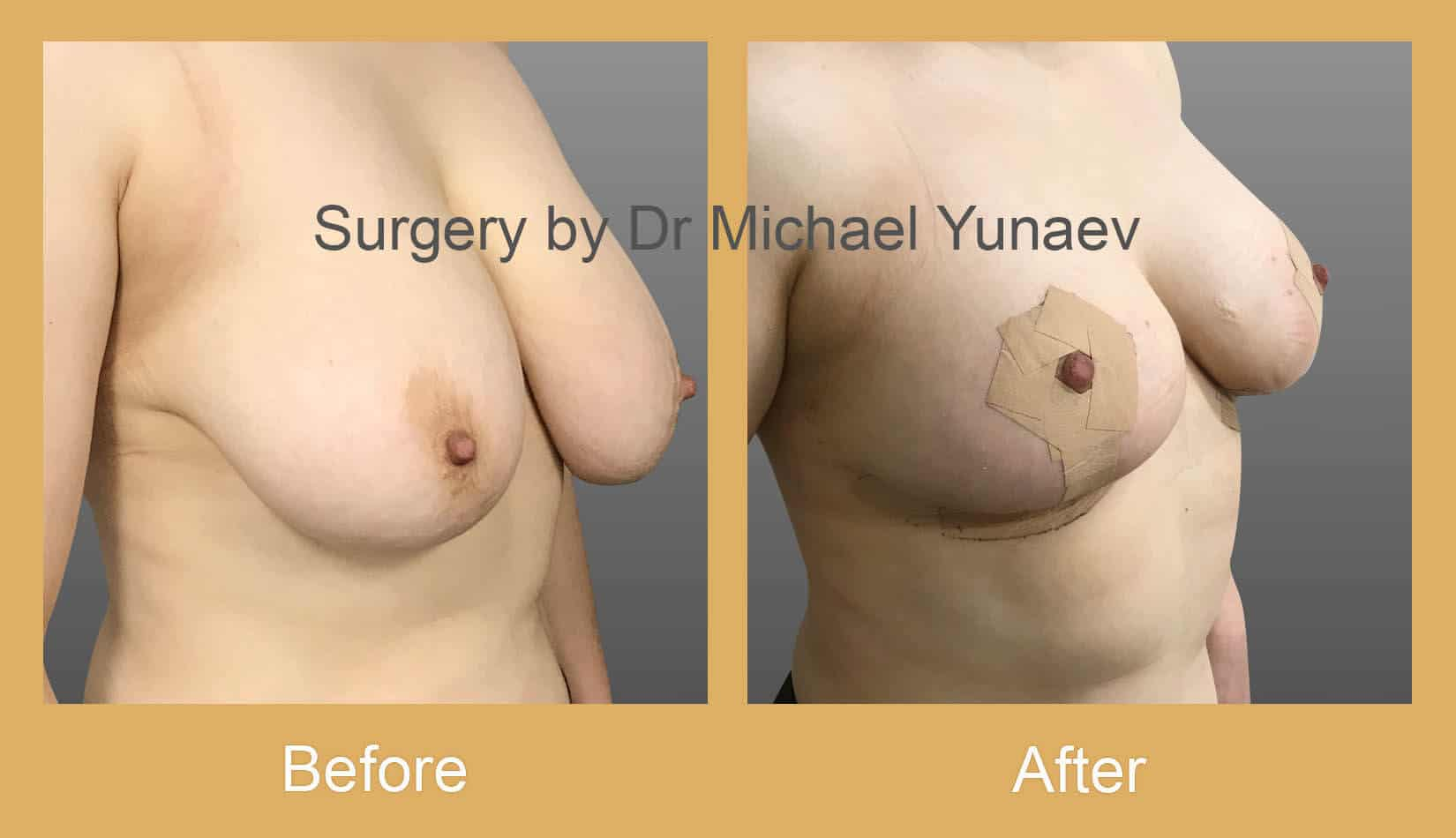 Breast reduction, lift and correction of breast asymmetry Sydney