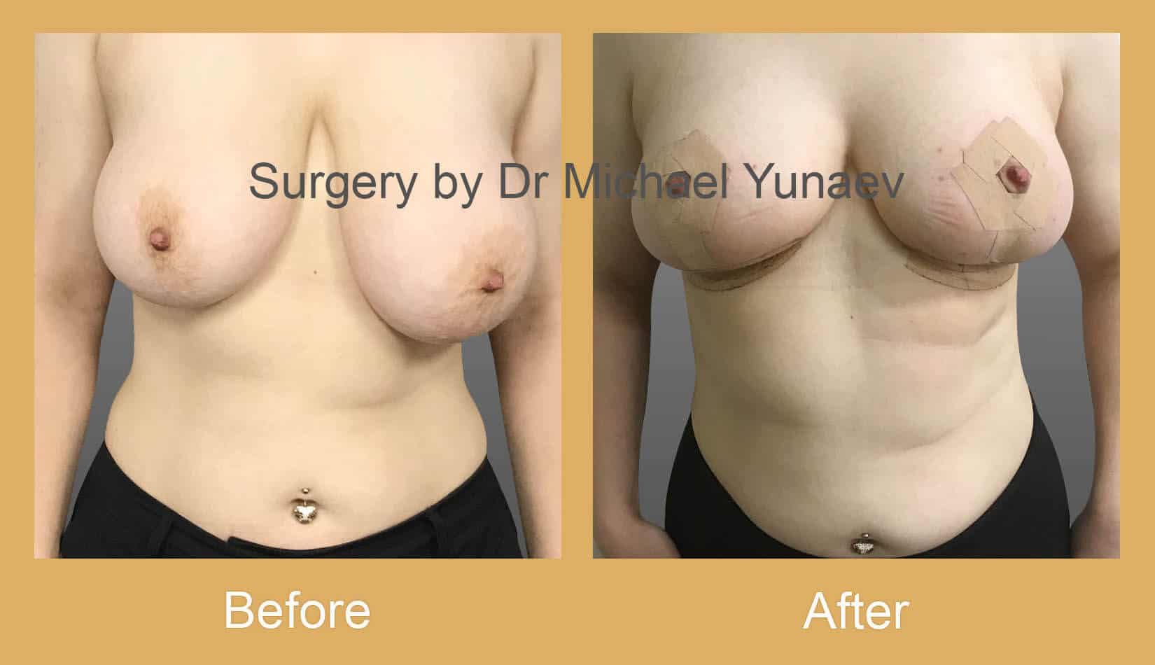 Breast reduction, lift and correction of breast asymmetry potts point