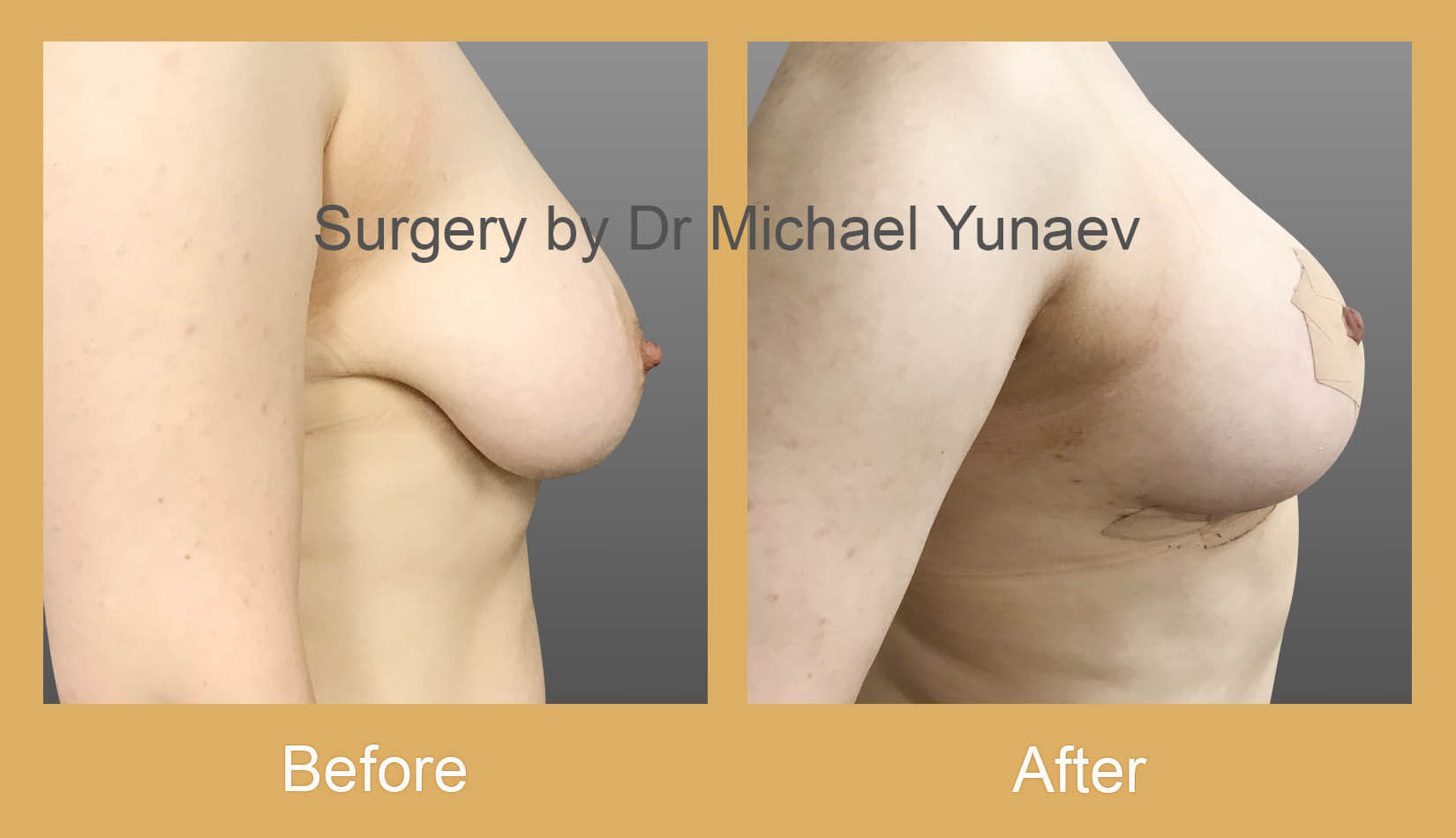 Breast reduction, lift and correction of breast asymmetry rozelle