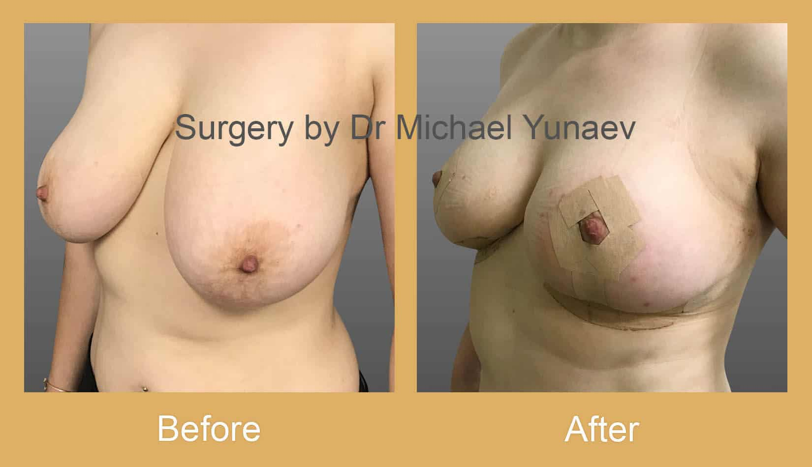 Breast reduction, lift and correction of breast asymmetry