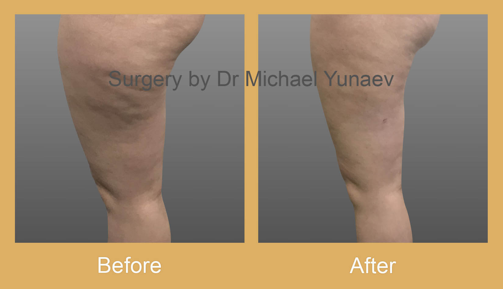 thigh liposuction before after