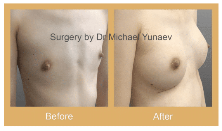 cosmetic breast body surgery queanbeyan