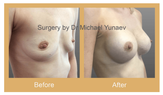 cosmetic reconstructive breast body surgery lismore