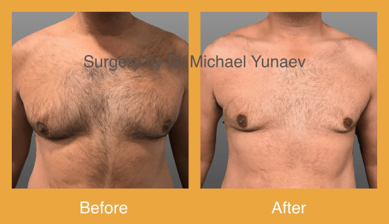 Cosmetic Reconstructive Surgery Sawtell