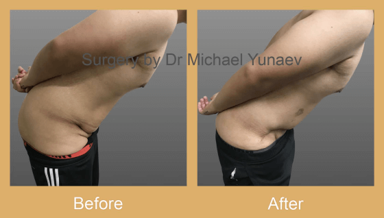 Cosmetic Reconstructive Surgery Windsor
