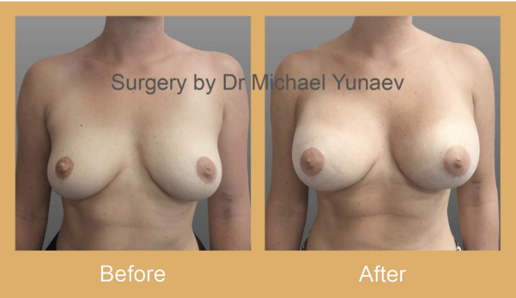 breast augmentation recovery in.Sydney