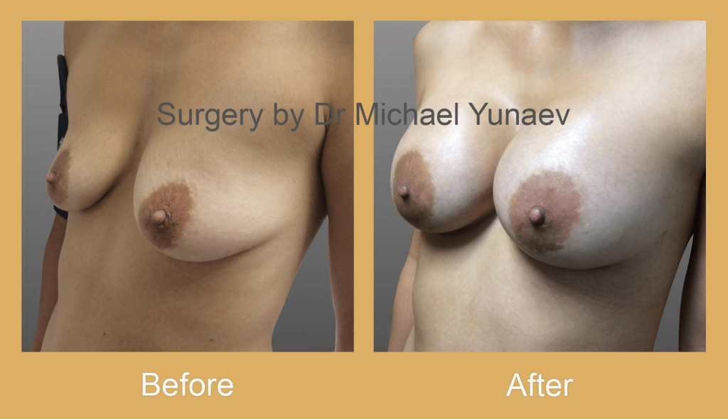 scarring after breast augmentation surgery
