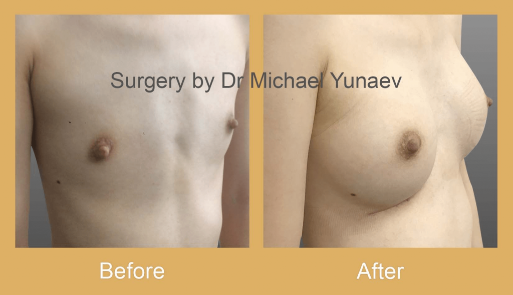 when I will see results after breast augmentation surgery