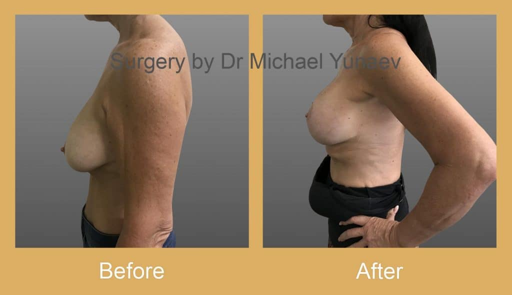 breast augmentation surgery sutherland shire