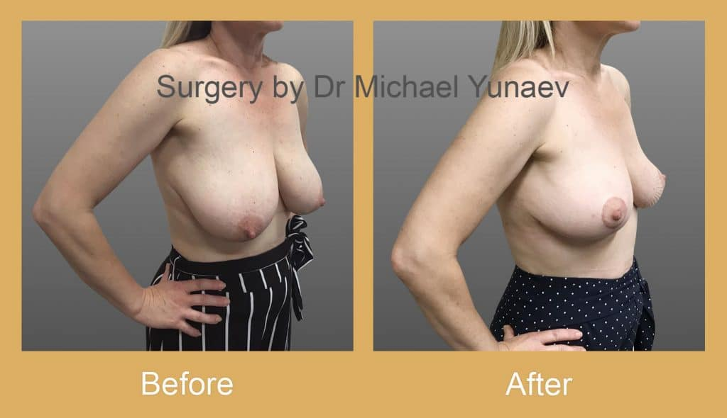 breast reduction and lift bowral
