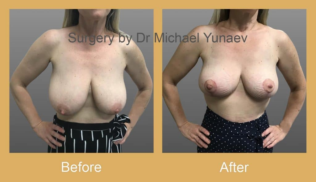 breast reduction and lift camperdown