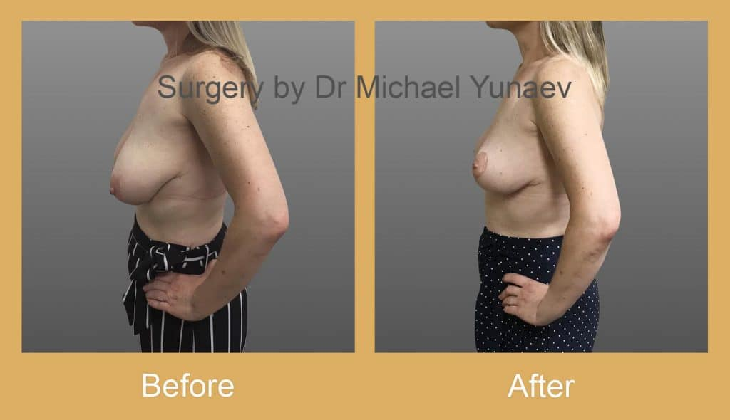 breast reduction and lift sutherland shire
