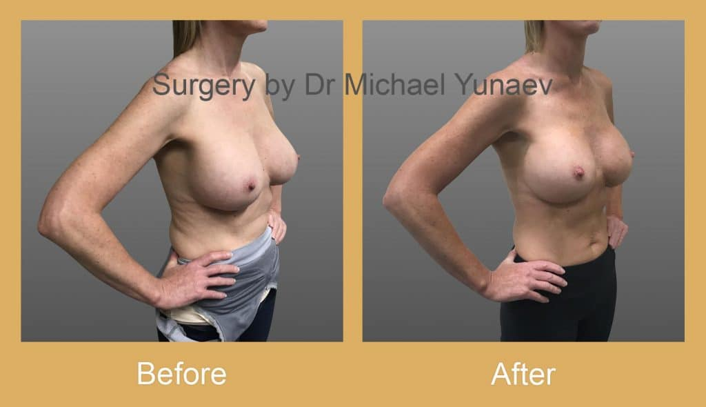 breast implant revisions bowral