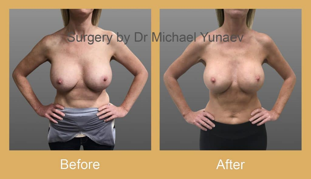 breast implant revisions camperdown