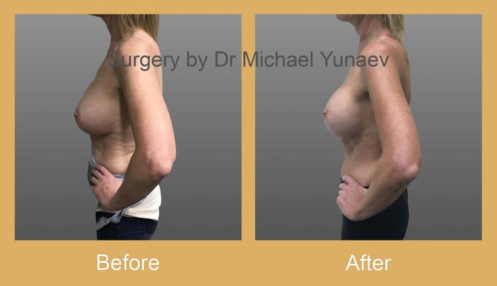 breast implant revisions sutherland shire