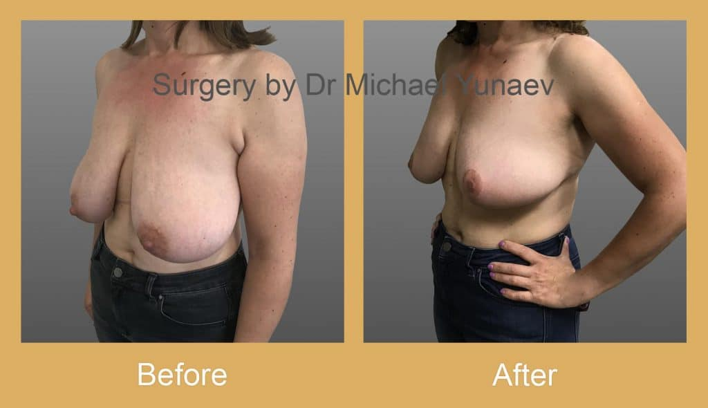 breast reduction surgery rozelle