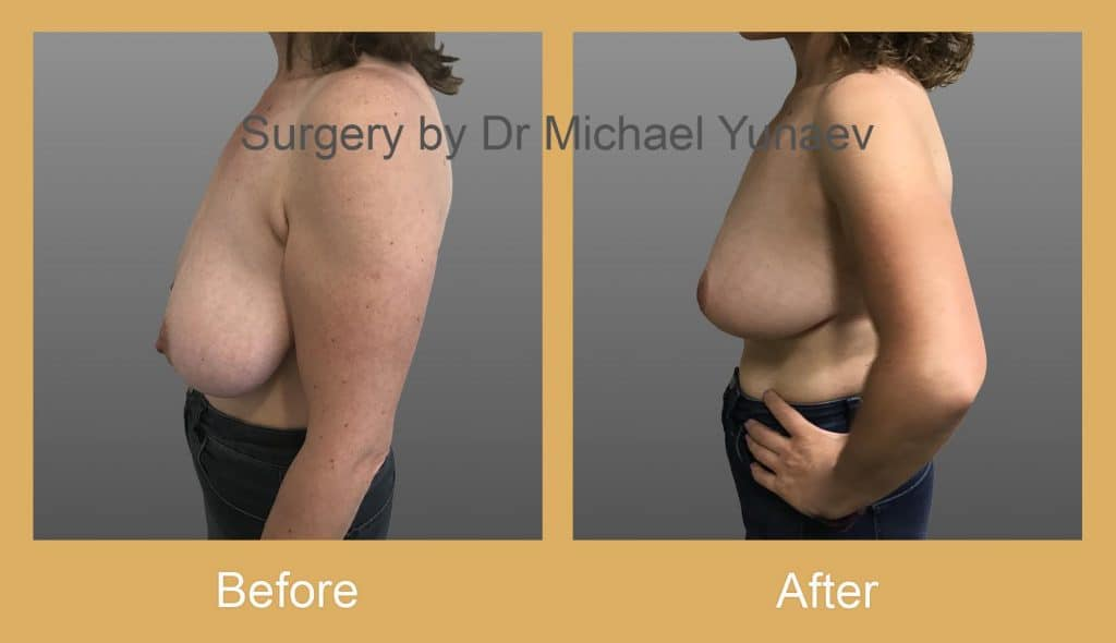 breast reduction surgery sutherland shire
