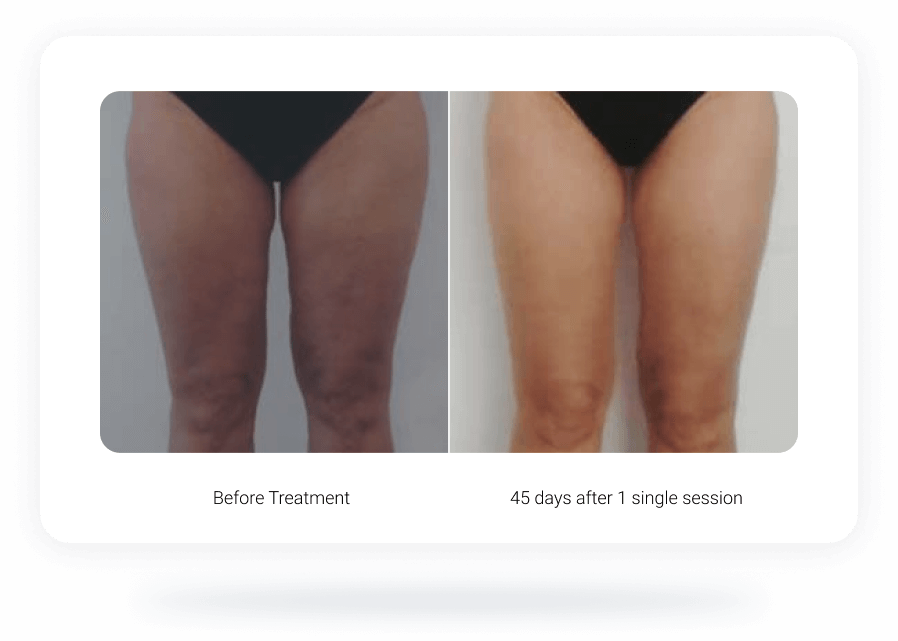 onda treatment before after