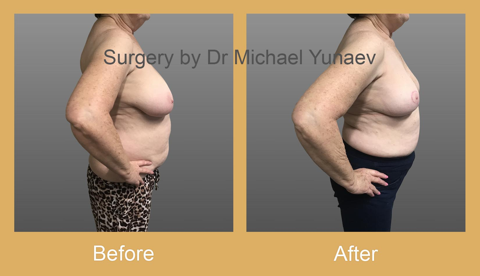 breast asymmetry before and after bella vista