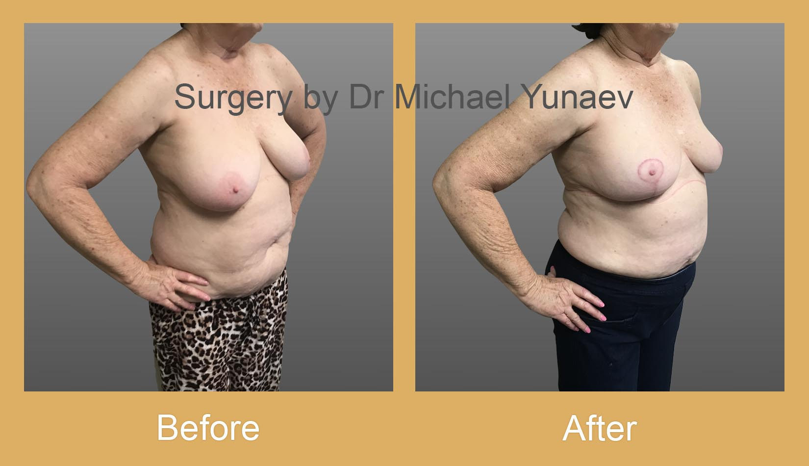 breast asymmetry before and after bowral