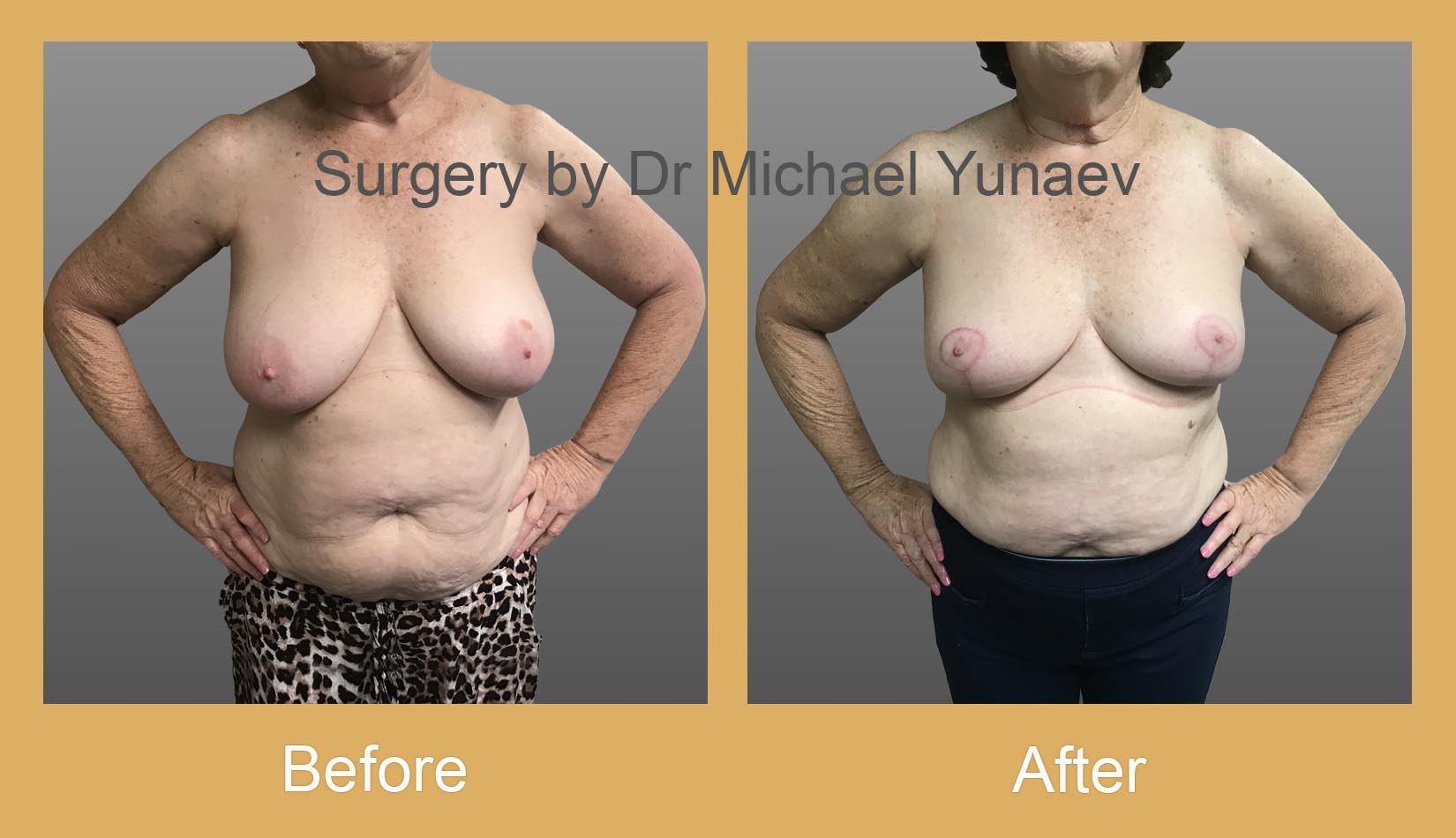 breast asymmetry before and after camperdown