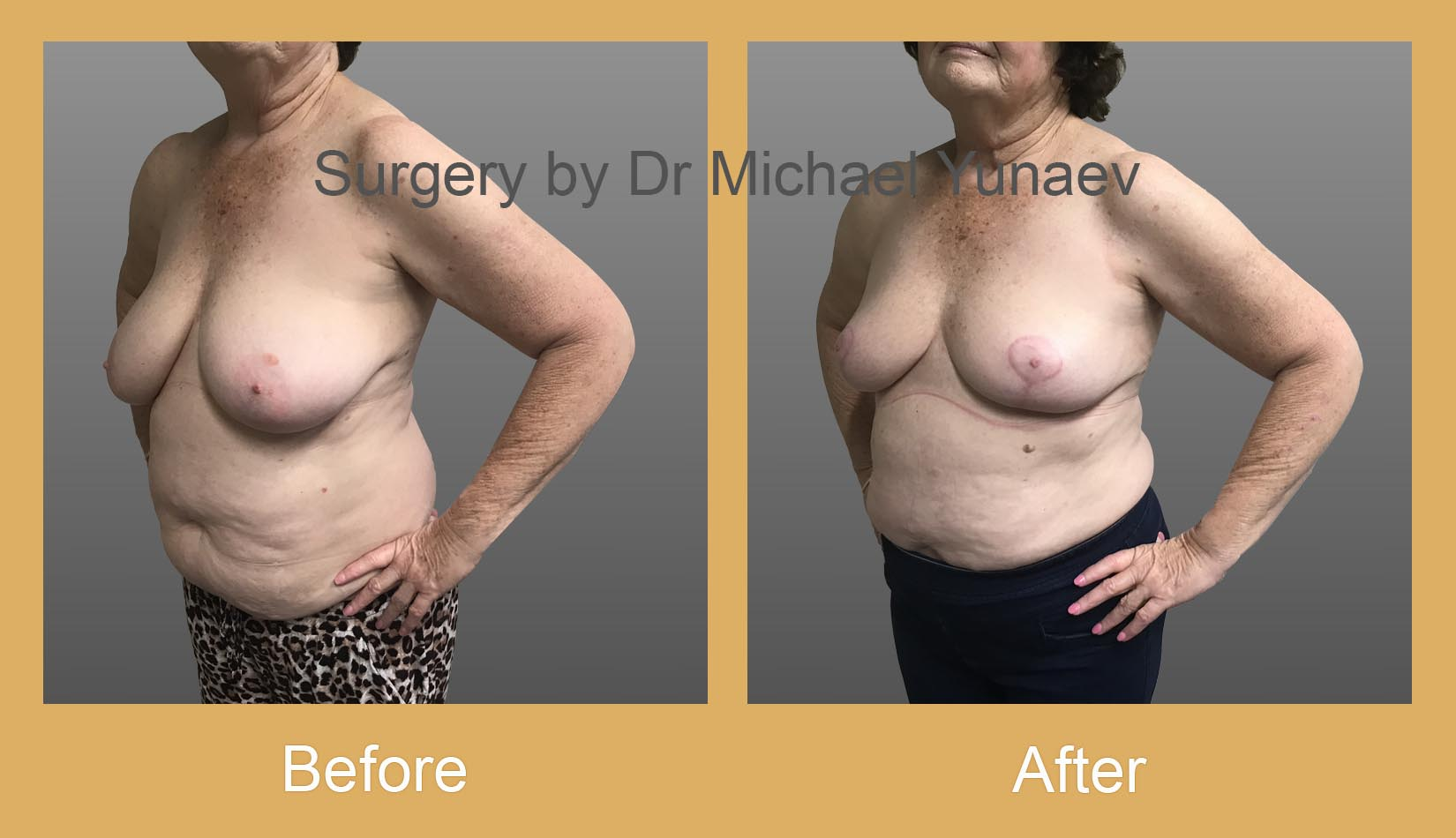 breast asymmetry before and after hurstville